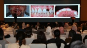 Dr. Knut Hufschmidt, Austria | No Limits! - The World of Direct Restorations